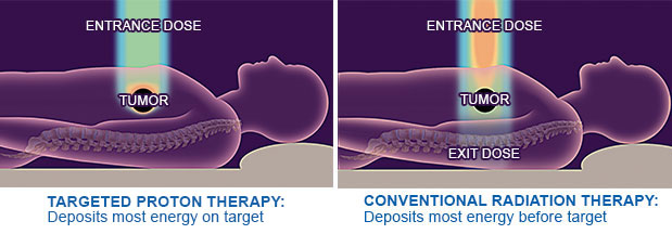 Proton vs conventional radiation therapy | Save The Cheeks